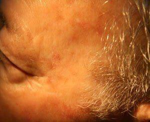 Pre Cancerous Sun Spots Drummoyne Dermatology